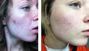 Earthing and acne image of girl's face